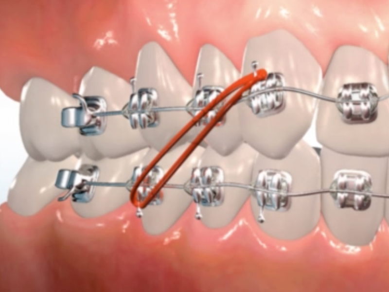 Orthodontic Appliances Theresa Skelton Orthodontics